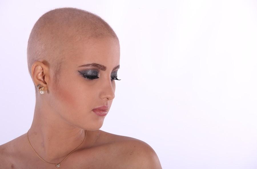Causas de alopecia, causas de calvicie, cómo saber si se cae el pelo por estrés, ¿por qué se produce la calvicie?, ¿por qué se produce la alopecia?, causas caída del cabello, tipos de alopecia, tipos de calvicie, clases de alopecia, clases de calvicie, alopecia genética en mujeres, Alopecia Androgénica, Alopecia Androgenética, Causas Alopecia Androgénica, Qué es la Alopecia Androgénica, Síntomas Alopecia Androgénica, Clínica Alopecia Androgénica, Tratamiento Alopecia Androgénica, calvicie, calvicie común, caída del pelo, caída del cabello, alopecia androgénica femenina, alopecia androgénica síntomas, ¿qué es la alopecia androgenética?, ¿qué es bueno para la calvicie en mujeres?, ¿qué es la alopecia femenina?, ¿qué es la alopecia en la mujer?, cómo saber si tienes alopecia androgenética, alopecia androgénica solución, alopecia androgénica cura, alopecia androgénica minoxidil, alopecia genética, alopecia androgénica causas, Minoxidil, Finasteride, injerto de pelo, microinjertos de pelo,