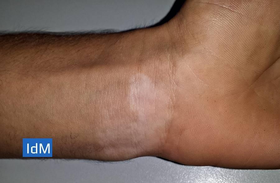 Vitíligo, fotos vitíligo, causas de vitíligo, síntomas de Vitíligo, Tratamiento de Vitíligo, Vitíligo en niños, ¿cómo empieza el Vitíligo?, ¿Qué es el vitíligo?, ¿A quién afecta el Vitíligo?,