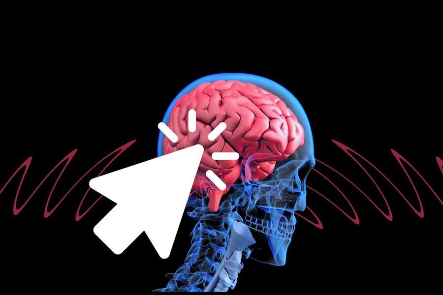 Qué es una Isquemia Cerebral