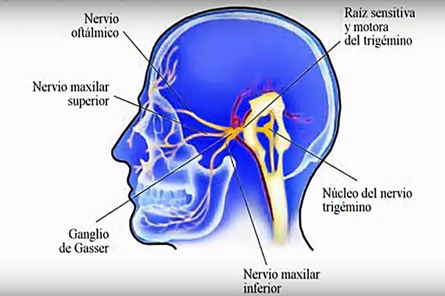 Neuralgia del Trigémino, causas de neuralgia del Trigémino, ¿Qué es la neuralgia del Trigémino, síntomas de la neuralgia del Trigémino, causas de dolor en la cara, dolor en la cara, cómo es el dolor del nervio Trigémino, cómo se llama el nervio de la cara,
