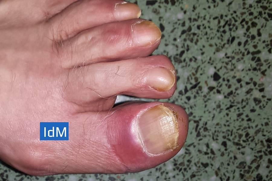 Paroniquia, Infección alrededor de las uñas