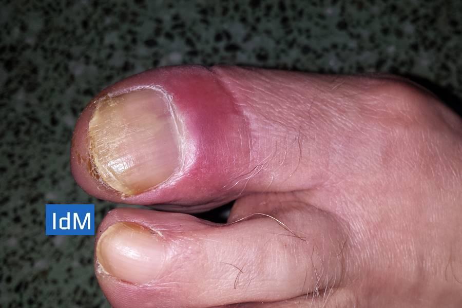 Infección alrededor de las uñas, panadizo, paroniquia, infección en las uñas, qué causa la paroniquia, cuál es el tratamiento de la pasroniquia, cómo prevenir la paroniquia, cómo diagnosticar la paroniquia, tipos de panadizo, tipos de paroniquia, qué causa el panadizo, cuál es el tratamiento del panadizo,
