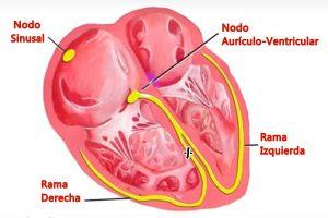 Bloqueo de Rama derecha, bloqueo de rama derecha del corazón, bloqueo cardíaco, ¿qué es un bloqueo en el corazón?, tengo un bloqueo en el corazón, ¿qué es un bloqueo cardíaco?, bloqueo en el corazón, ¿A quién afecta el Bloqueo de Rama Derecha?, causas del Bloqueo de Rama Derecha, tipos de Bloqueo de Rama Derecha, Diagnóstico del Bloqueo de Rama Derecha, Síntomas del Bloqueo de Rama Derecha, tratamiento del Bloqueo de rama derecha, pronóstico del bloqueo de rama derecha, rama derecha del haz de his,
