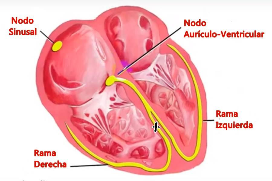 Bloqueo de Rama Derecha del Corazón