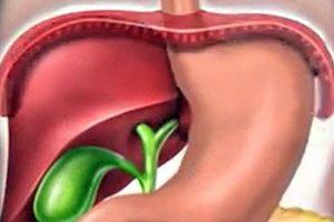 Síntomas de la hernia de Hiato, Tipos de hernia de hiato, hernia de hiato por deslizamiento, hernia de hiato paraesofágica, hernia hiatal,
