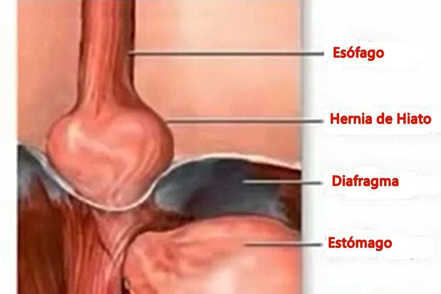 hernia de hiato, hernia hiatal, tratamiento de la hernia de hiato, diagnóstico de la hernia de hiato, complicaciones de la hernia de hiato, tratamiento para la hernia de hiato, pronóstico de la hernia de hiato,