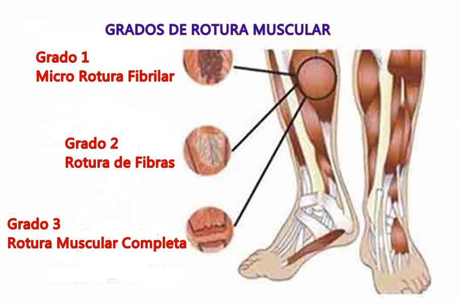 ¿qué es un tirón muscular?, rotura de fibras, rotura fibrilar, rotura muscular, tirón muscular, tirón muscular en el futbolista, microrotura muscular, tirón muscular en el fútbol, microrotura muscular en el fútbol, ,Causas de la Rotura Muscular, Tipos de Rotura de Fibras, Síntomas de un Tirón Muscular, Diagnóstico de una Rotura Fibrilar, Tratamiento de un Tirón Muscular, Factores de Riesgo para la Rotura de Fibras, Cómo Prevenir una Rotura Muscular, ¿A quién afecta la Rotura de Fibras?, ¿en qué músculos se produce una tirón muscular?, Diagnóstico Clínico de una Rotura de Fibras, Diagnóstico mediante la Exploración Física de un Tirón Muscular, Diagnóstico con Ecografía de una Rotura de Fibras, Tratamiento de la Rotura de Fibras de grado 1 y 2, Tratamiento de la Rotura Muscular o Tratamiento del Tirón Muscular de Grado 3,