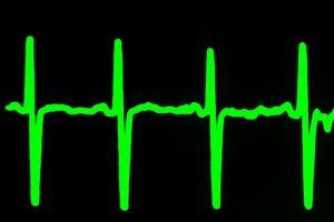 Causas de la Taquicardia, síntomas de la taquicardia, diferencia entre arritmia y taquicardia, ¿Qué es la taquicardia?, Taquicardia Sinusal, Factores de Riesgo para la Taquicardia Sinusal,
