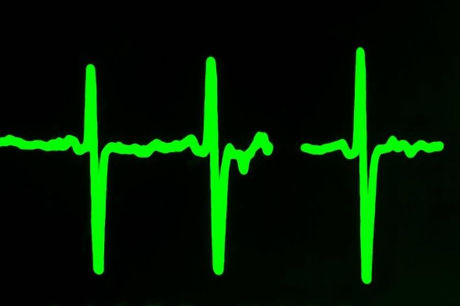 Tratamiento de la taquicardia sinusal, diagnóstico de la taquicardia sinusal, Cómo prevenir la Taquicardia Sinusal, Diagnóstico Clínico de la taquicardia Sinusal, Diagnóstico mediante la realización de Pruebas Cardíacas, Diagnóstico Diferencial de la Taquicardia Sinusal, Diagnóstico Analítico de la Taquicardia Sinusal, Maniobras Vagalespara disminuir la Frecuencia Cardíaca, Medicamentos para la Taquicardia Sinusal, medicamentos para disminuir la Frecuencia Cardíaca, disminuir la frecuencia cardíaca,