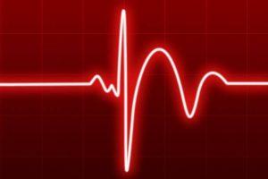 extrasístoles supraventriculares, Tratamiento de los extrasístoles supraventriculares, causas de los extrasístoles supraventriculares, ¿Qué es un Extrasístole?, Tipos de Extrasístoles, ¿Qué son los Extrasístoles Supraventriculares?, Síntomas de los Extrasístoles Supraventriculares, Diagnóstico de los Extrasístoles Supraventriculares,