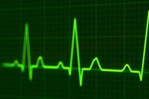 ¿Qué es un soplo en el corazón?, causas de soplo en el corazón, Síntomas del soplo en el corazón, Soplos cardíacos Anormales, Soplos cardíacos funcionales, Causas de Soplos Cardíacos Anormales en los niños, Causas de Soplos Cardíacos Anormales en los adultos,