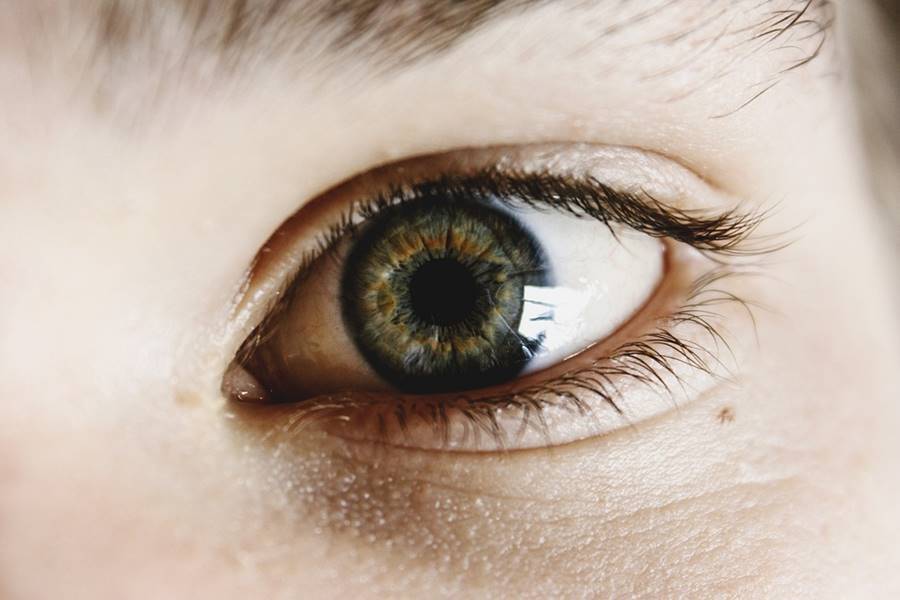 Síntomas de la Blefaritis, ¿Cuál es el tratamiento de la Blefaritis?, ¿Cuáles son las causas de la Blefaritis?, Complicaciones de la Blefaritis, Diagnóstico de la Blefaritis, ¿Cómo hay que limpiar los ojos?, ¿Qué es la caspa en las Pestañas?,