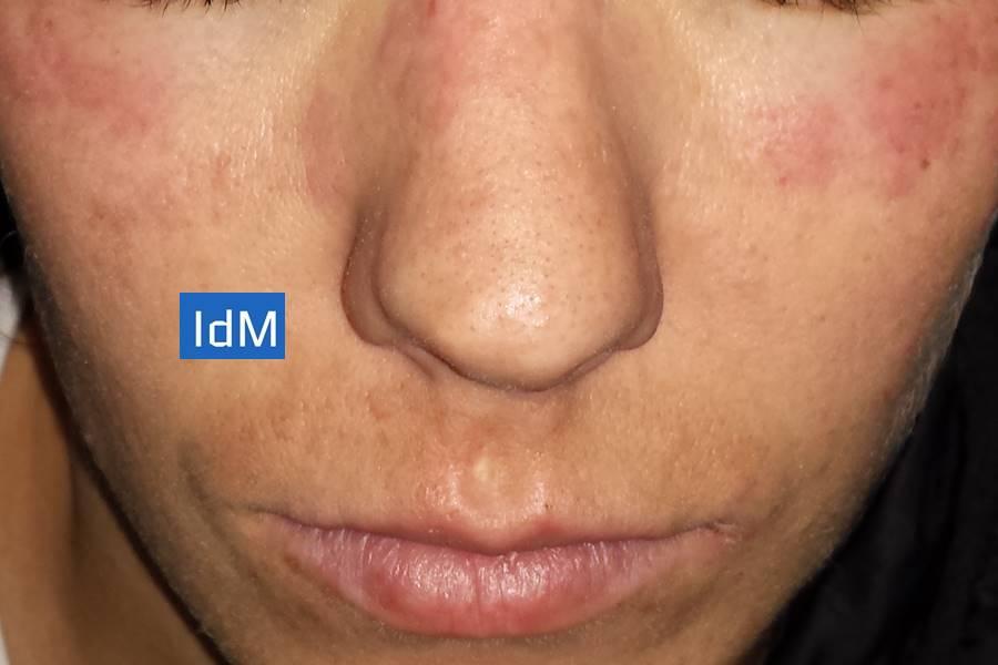 Tratamiento del Lupus Eritematoso Sistémico, Tratamiento del Lupus, ¿Tiene Cura el Lupus Eritematoso Sistémico?, Tratamiento NO Farmacológico del Lupus, ¿Cómo Prevenir los Síntomas del Lupus?,