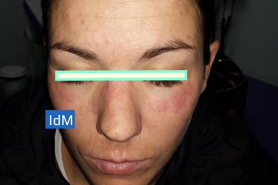 ¿Cómo se hace el diagnóstico del Lupus?, Nuevos Criterios de clasificación ACR/EULAR para Lupus Eritematoso Sistémico, Diagnóstico del Lupus mediante la Clínica, Diagnóstico del Lupus a través de las Pruebas de Laboratorio, Diagnóstico del Lupus con Biopsia, Cuáles son los Anticuerpos del Lupus Eritematoso Sistémico,
